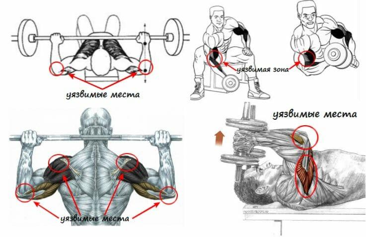 уязвимые зоны плечевого пояса