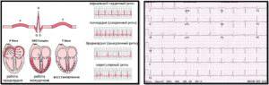 Результаты ЭКГ сердца здорового человека