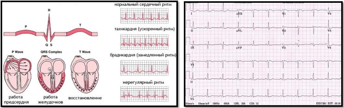 Как сделать чтобы кардиограмма была в норме