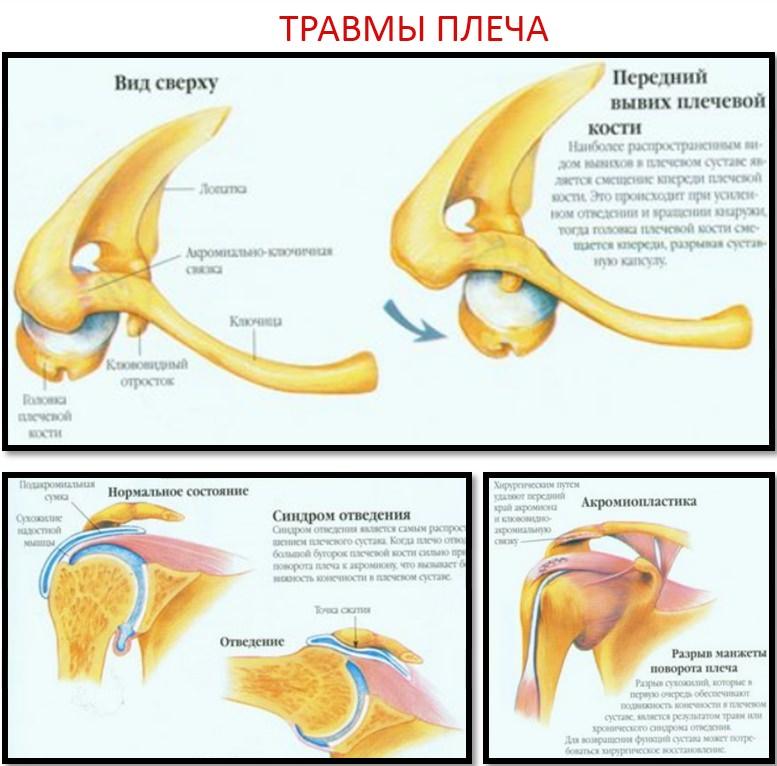 Травмы плеча