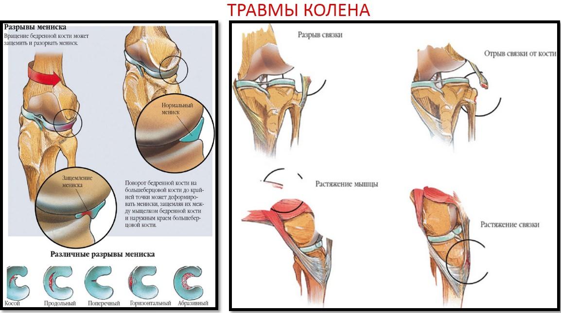 Травмы колена, памятка