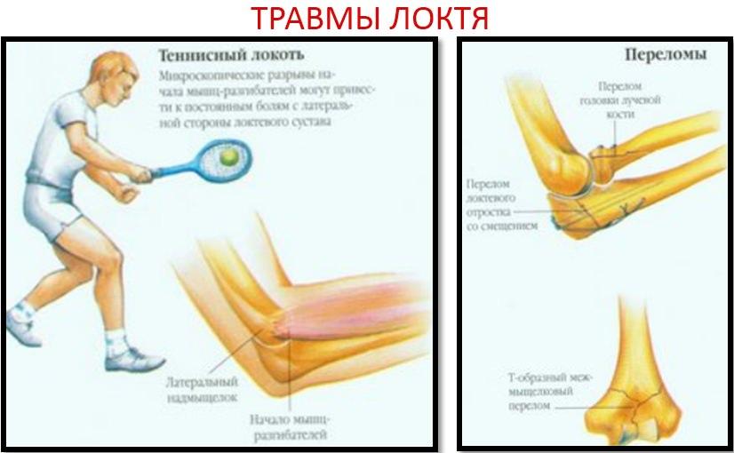 Травмы локтя