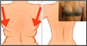 Жир на спине и в области подмышек