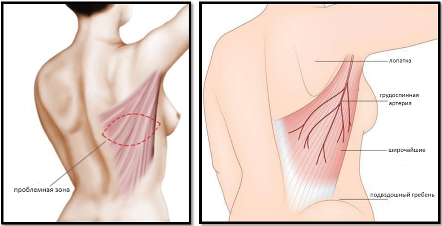 Анатомия спины, широчайшие мышцы спины