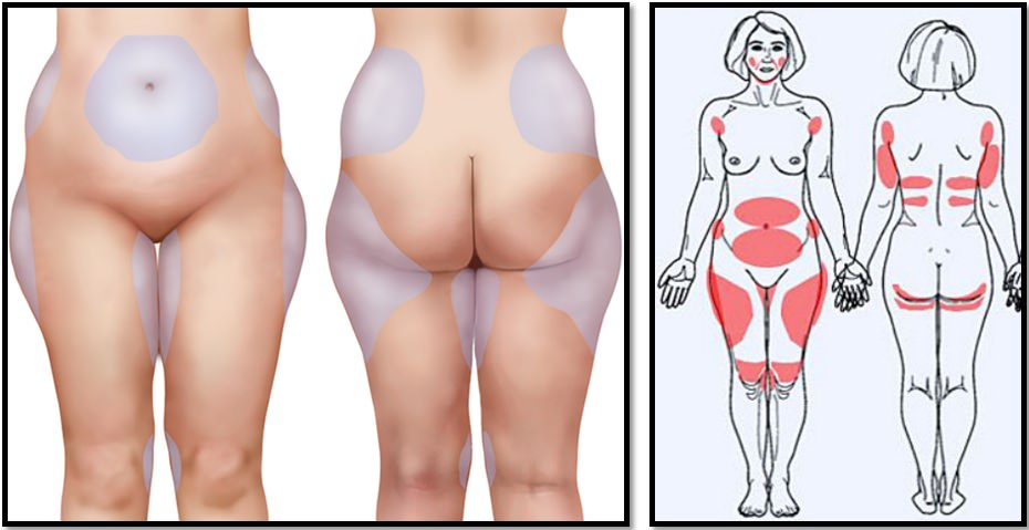 Как убрать жир с коленей? Полное практическое руководство