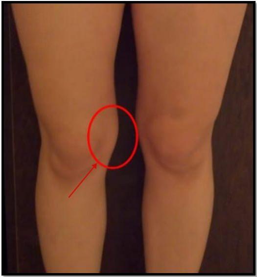 Жир на коленках, пример