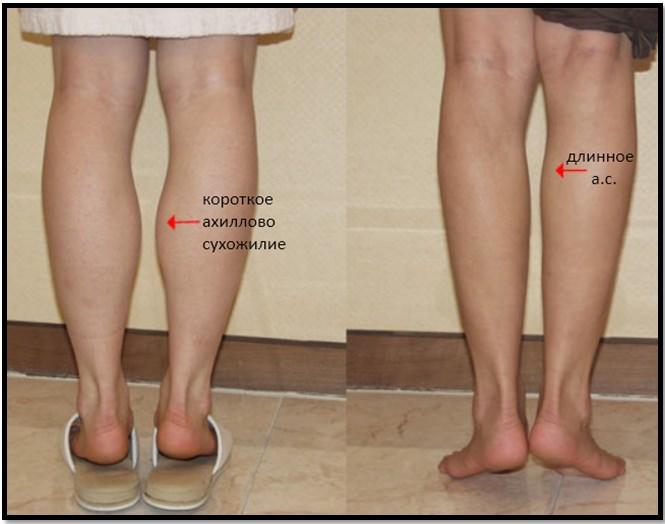 Как похудеть в икрах ног если они накачены