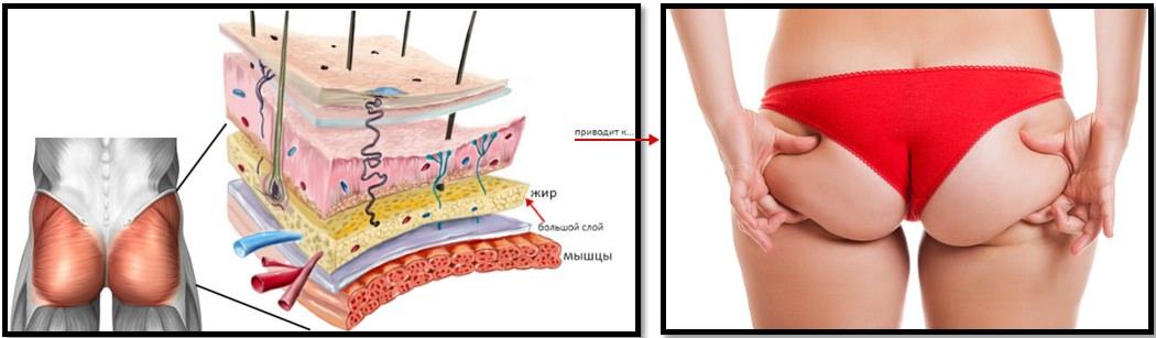 Соотношение мышцы-жир в ягодицах