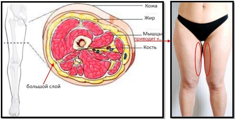 Нарушение соотношения мышц - жира на внутренней части бедер
