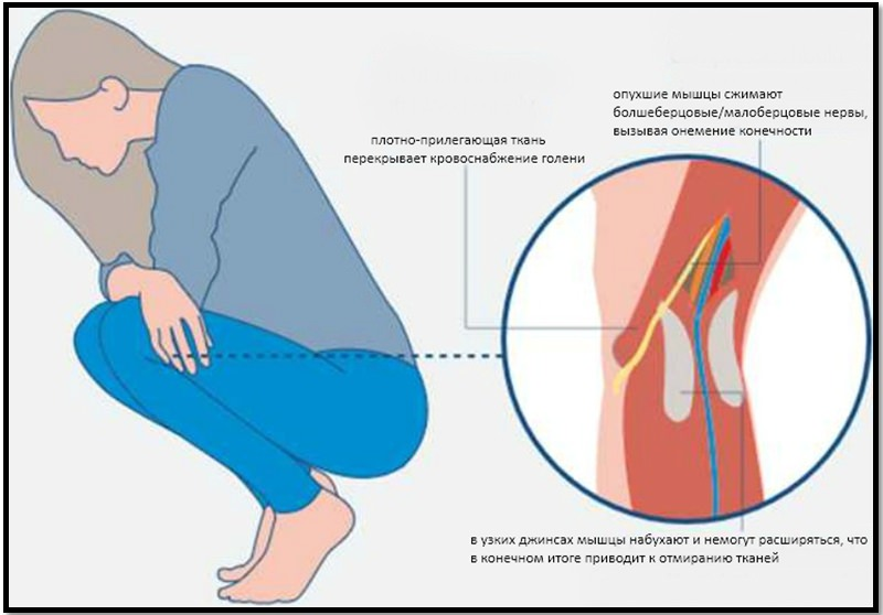 Влияние узких джинсов на ноги