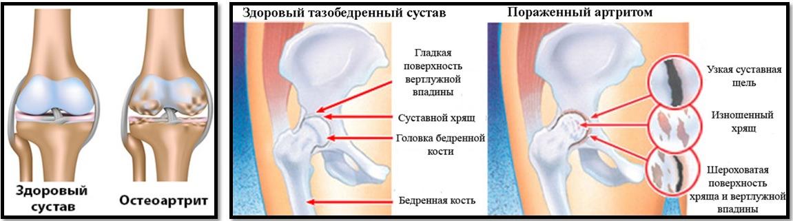 Артроз и бодибилдинг. Здоровый сустав и поражённый артритом.
