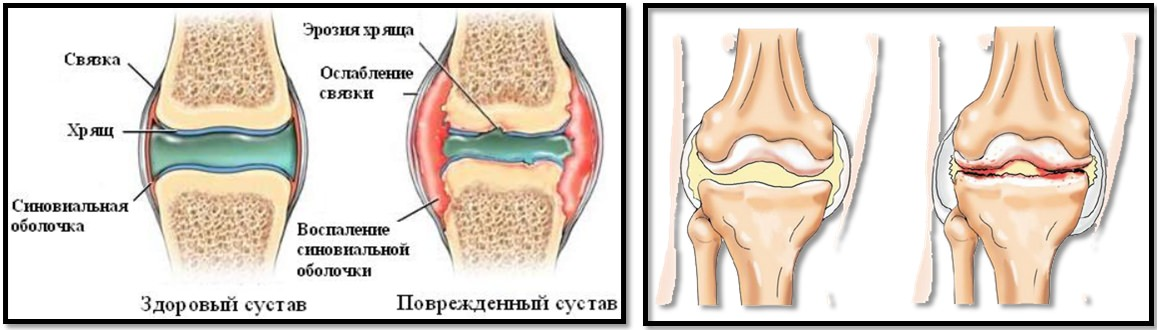 как укрепить суставы и связки коленного сустава