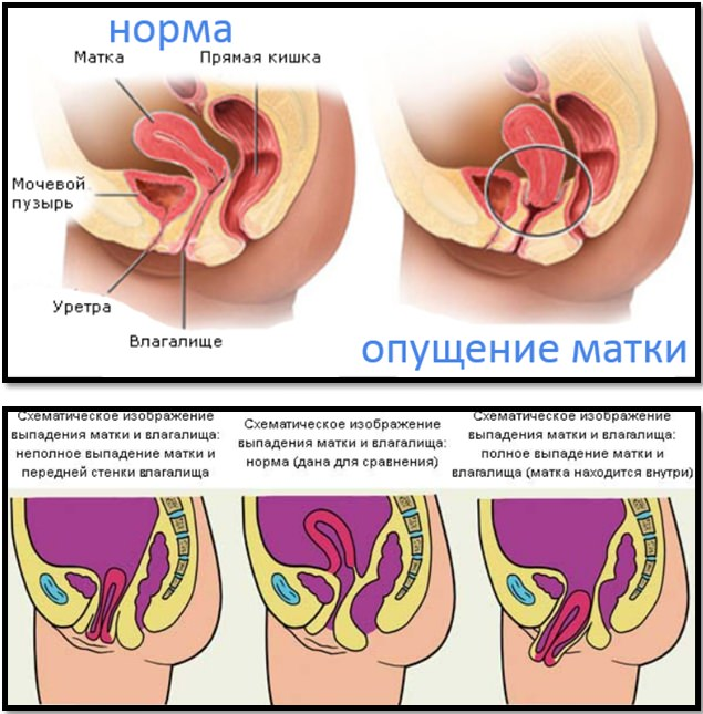 Опущение матки. Норма и выпадение матки и влагалища.