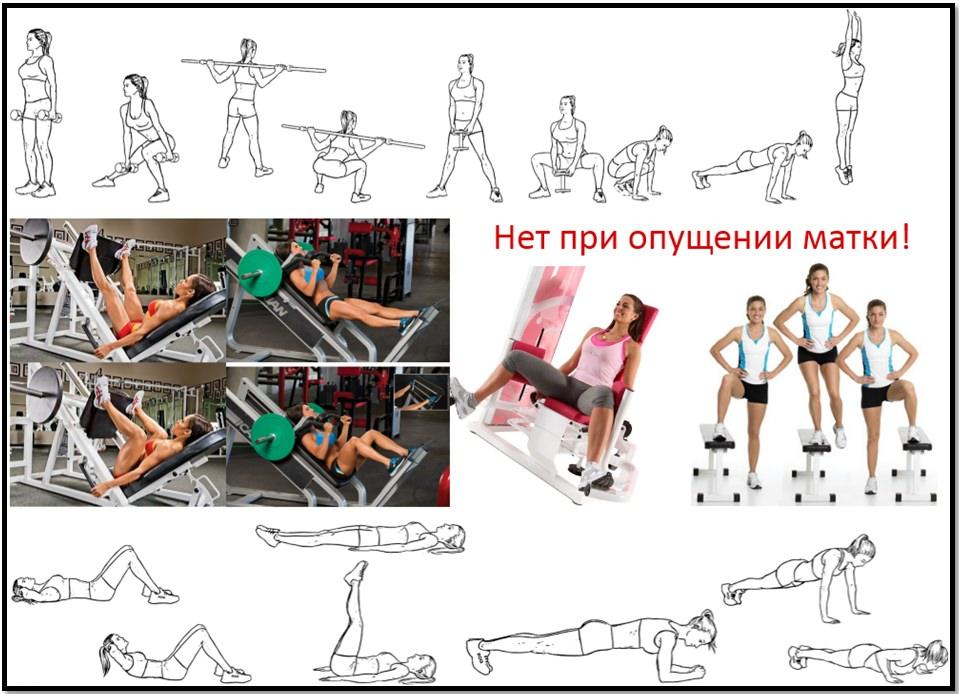 Опущение матки. Каких упражнений следует избегать.