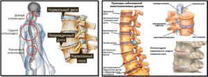 Остеохондроз и бодибилдинг. Заболевания межпозвоночных дисков.