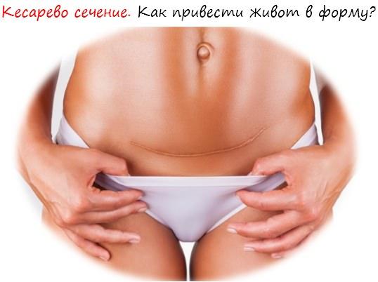 Кесарево сечение. Статья лого