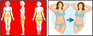 3wyfHAM-300x117 Упражнения для похудения. Атлас проблемных зон.