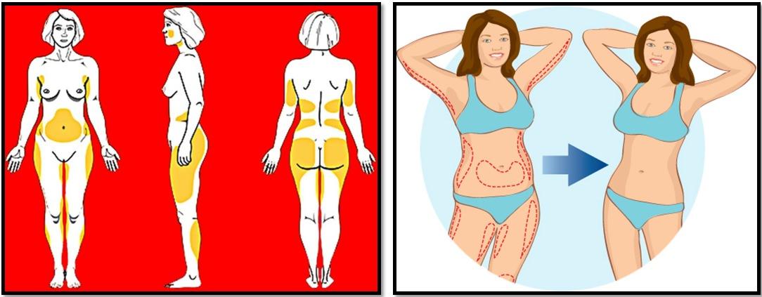 Упражнения для похудения. Атлас проблемных зон.