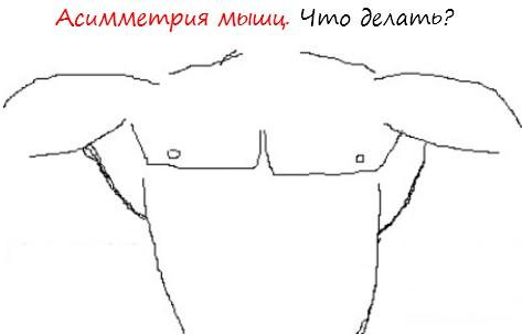 Асимметрия мышц