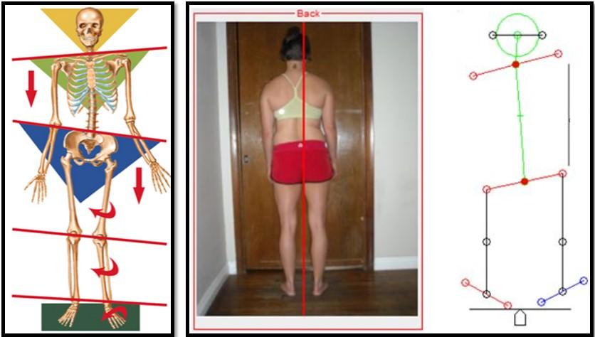 искривление несущих суставов тела