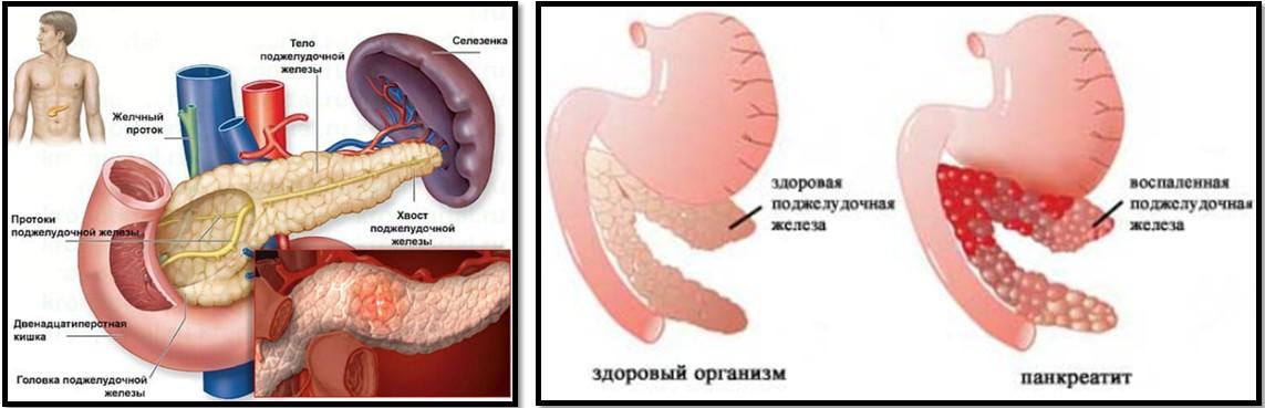 Поджелудочная железа и панкреатит