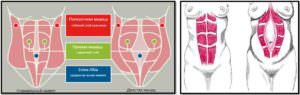 Диастаз прямых мышц живота анатомия