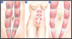 Виды диастаза мышц живота