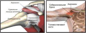 3gNaC4U-300x118 Субакромиальный синдром что это
