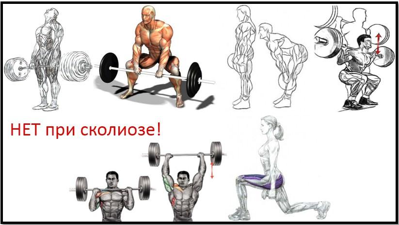 Упражнения которые не нужно выполнять при сколиозе в тренажерном зале