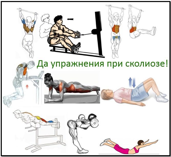 Упражнения в тренажерном зале которые можно выполнять при сколиозе