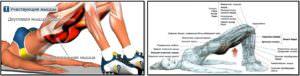 Ягодичный мостик мышцы анатомия