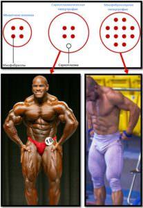 Виды гипертрофии мышц, примеры