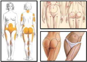 основные зоны целлюлита у женщин