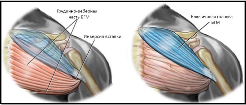 большая грудная мышца две головки