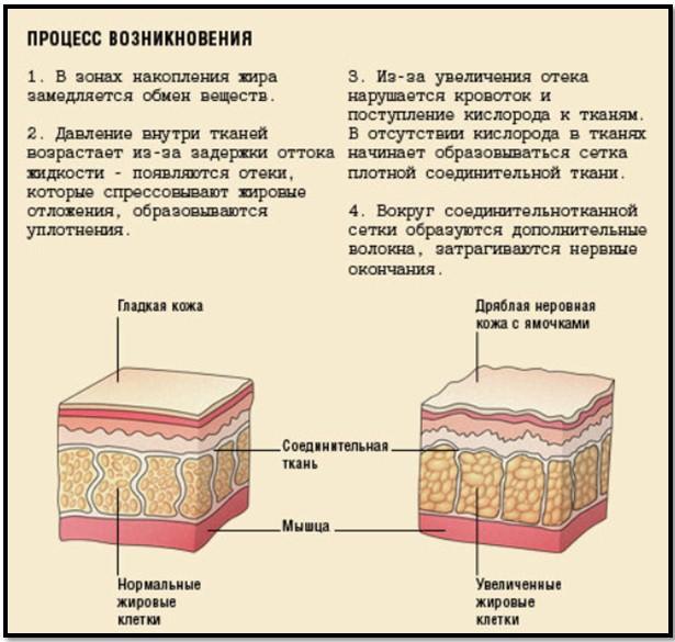 стадии целлюлита