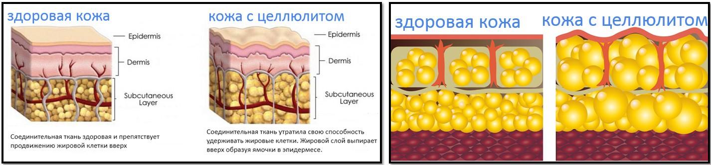 анатомия целлюлита