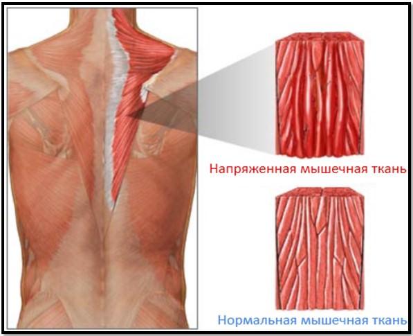 обычная мышца и с болевым синдромом