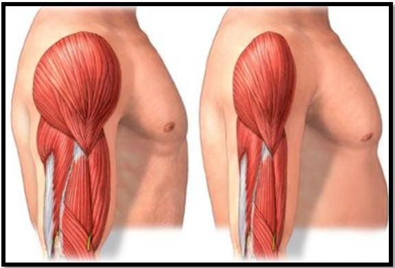 уменьшение мышцы в размерах