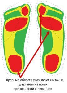 шлепанцы области давления при ношении