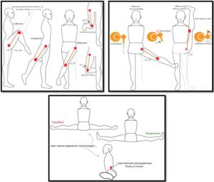Диапазон движения hip joint