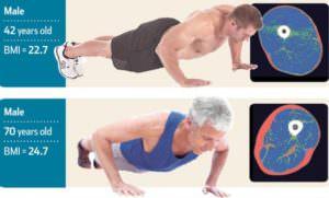 Кости, суставы и мышцы, возрастные изменения