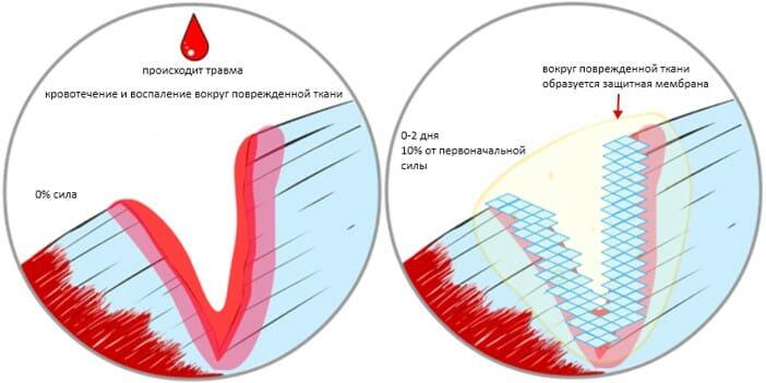восстановление мышц, этап 1