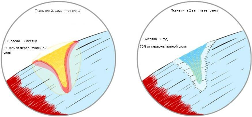 восстановление мышц, этап 3