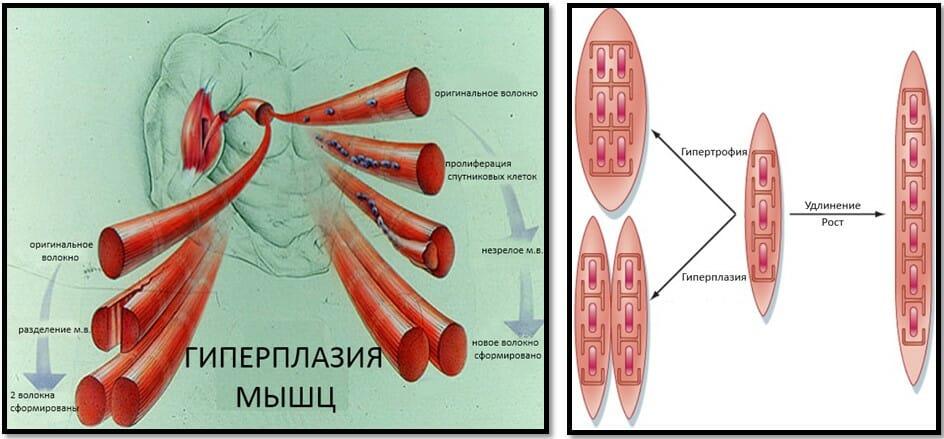 процесс гиперплазии мышц