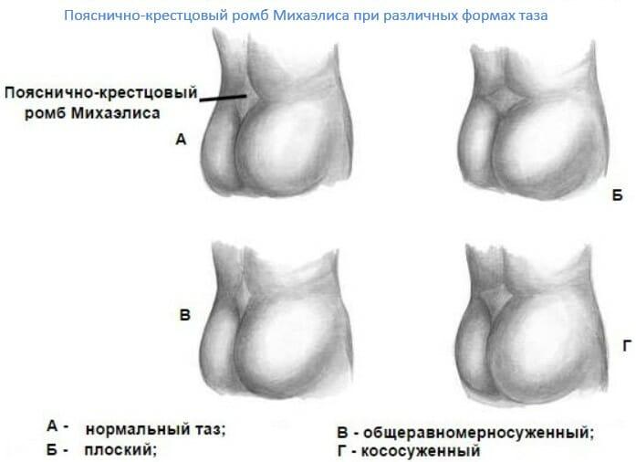 пояснично-крестцовый ромб при различных формах таза у женщин