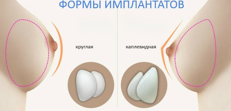формы имплантатов груди