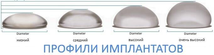 профили имплантатов