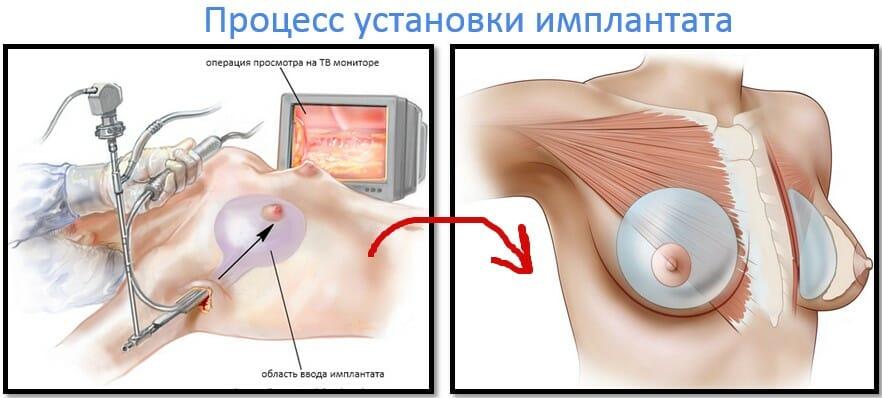 процесс установки имплантата груди
