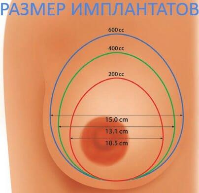 размер имплантатов