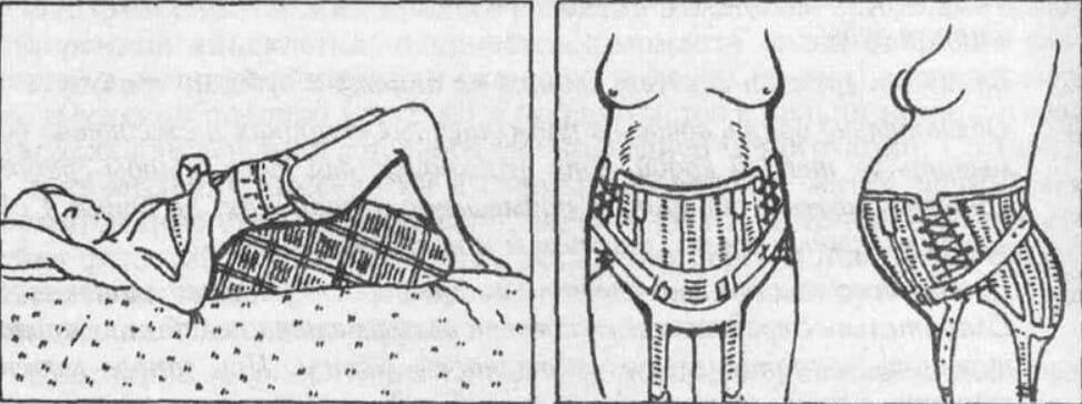 надевать бандаж лежа